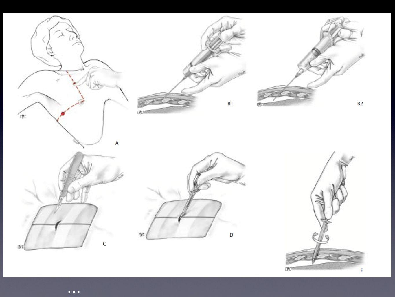 Pose du drain Incision cutanée parallèle à la cote Discision musculaire avec Halstead jusqu'au rebord costal Préparation de la bourse en U avec un Sil