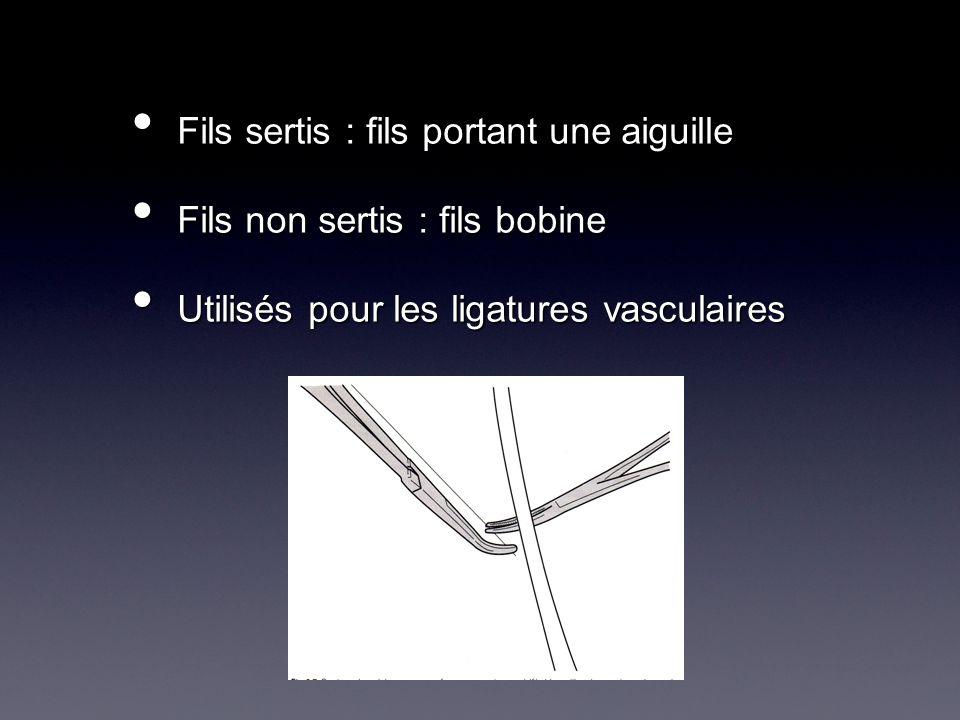 Forme de laiguille : Forme de laiguille : Pointe de laiguille Longueur de corde Longueur de laiguille Corps de laiguille Méplat