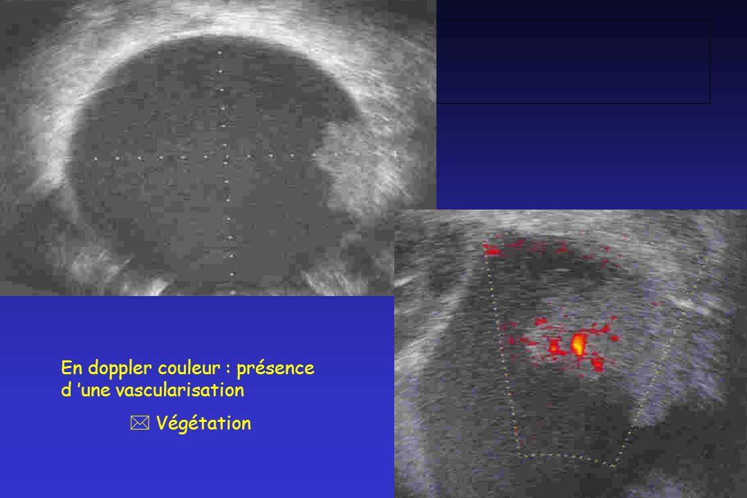 En doppler couleur : présence d une vascularisation * Végétation