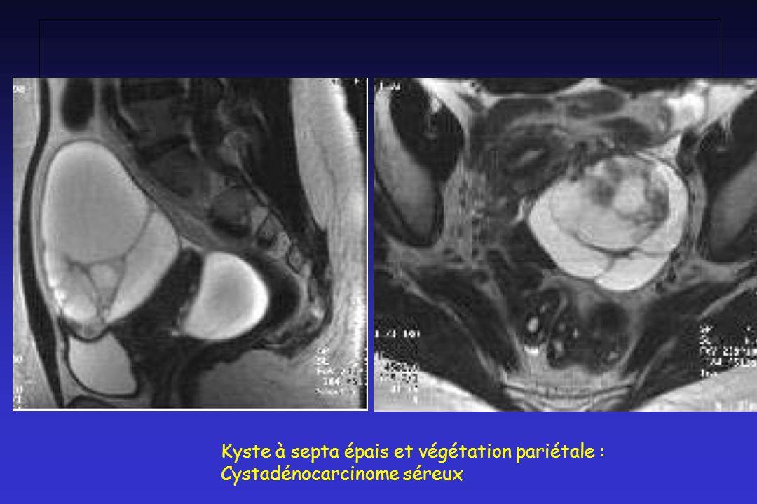 Kyste à septa épais et végétation pariétale : Cystadénocarcinome séreux