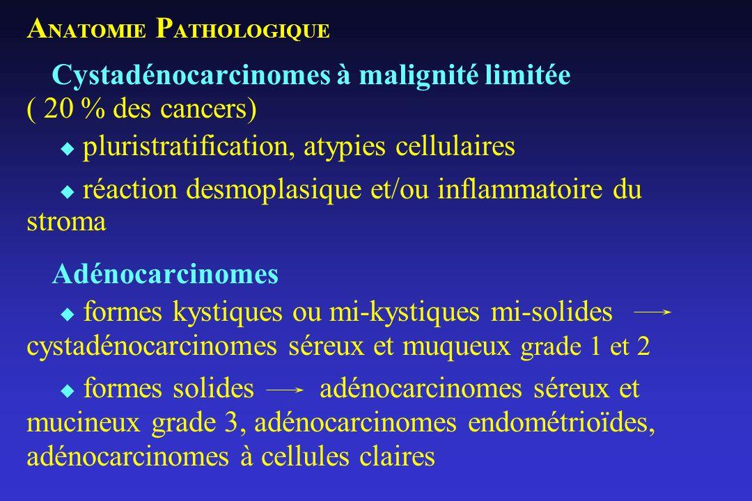 A NATOMIE P ATHOLOGIQUE Cystadénocarcinomes à malignité limitée ( 20 % des cancers) pluristratification, atypies cellulaires réaction desmoplasique et