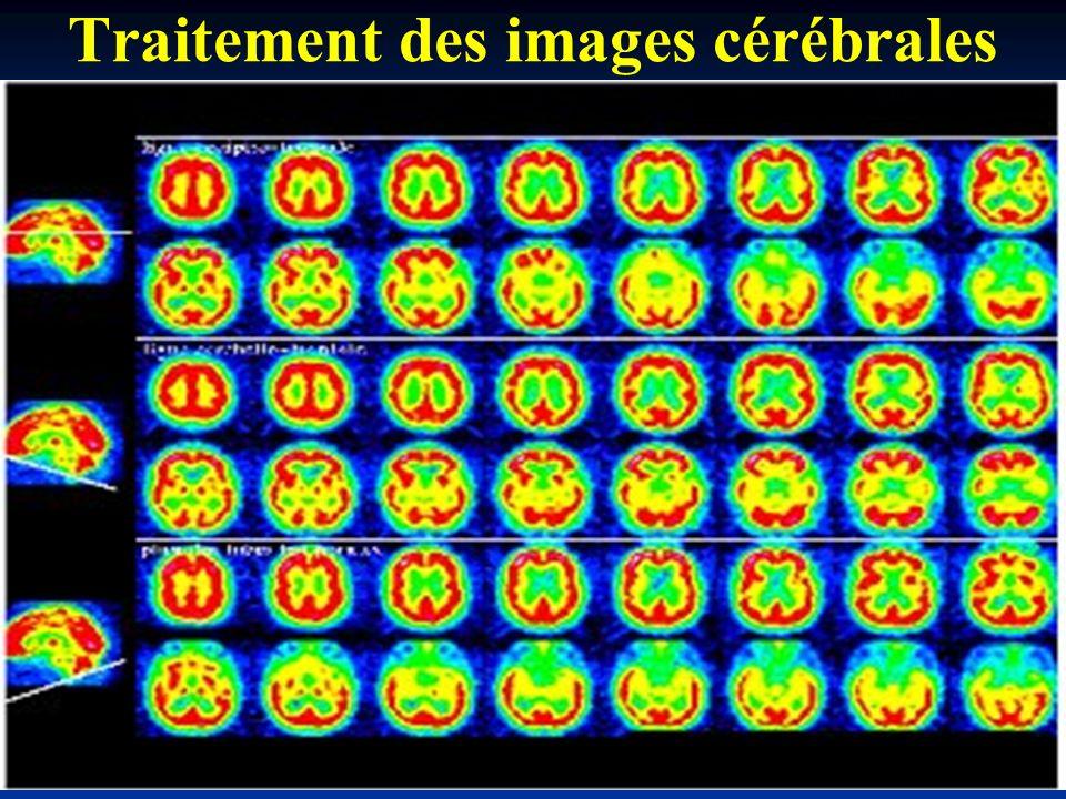 Traitement des images cérébrales