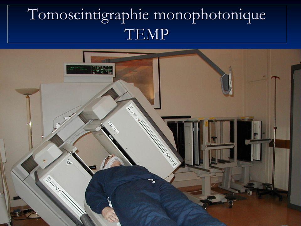 Tomoscintigraphie monophotonique TEMP