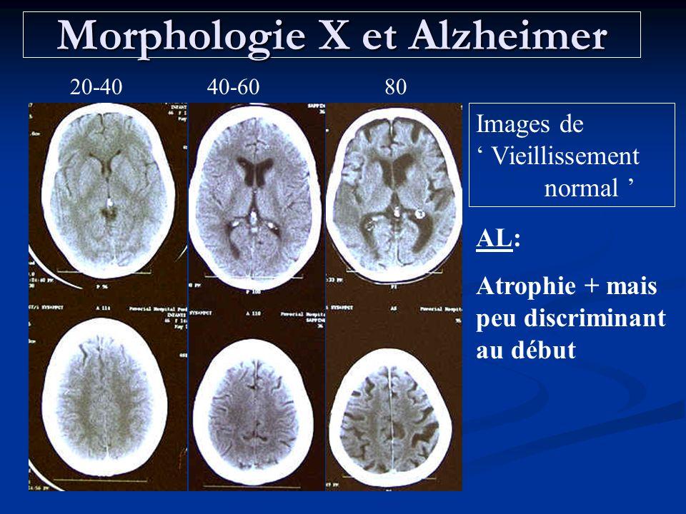 Morphologie X et Alzheimer 20-4040-6080 Images de Vieillissement normal AL: Atrophie + mais peu discriminant au début