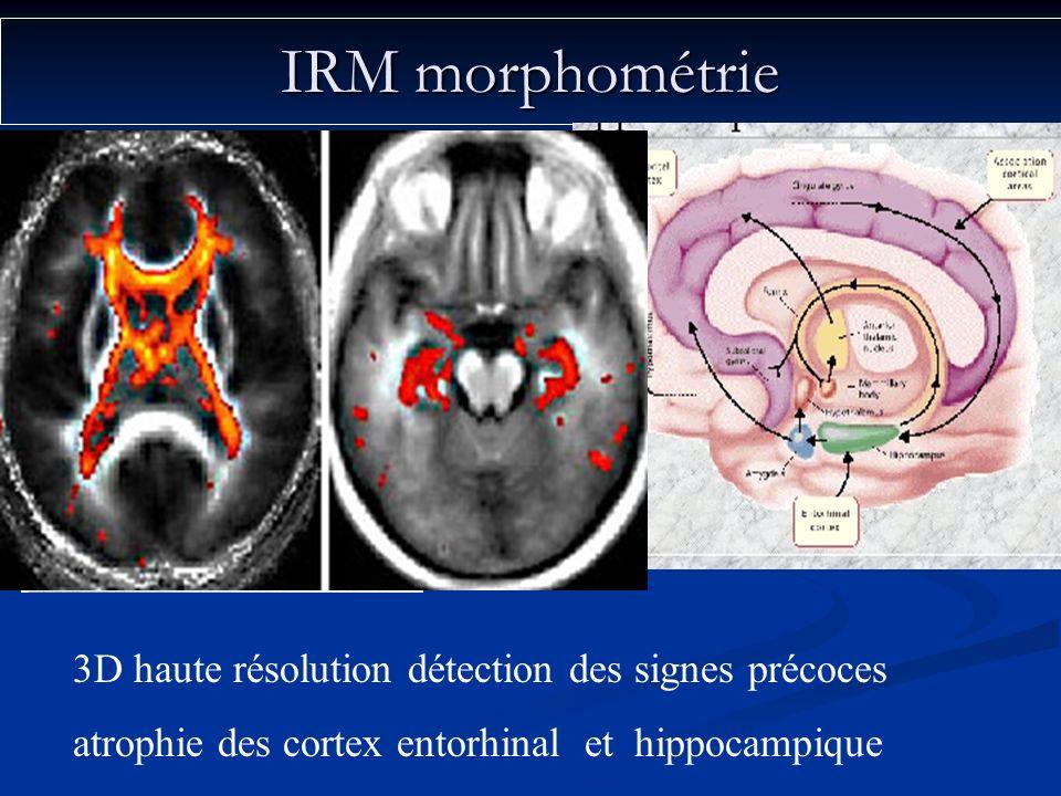 IRM morphométrie 3D haute résolution détection des signes précoces atrophie des cortex entorhinal et hippocampique