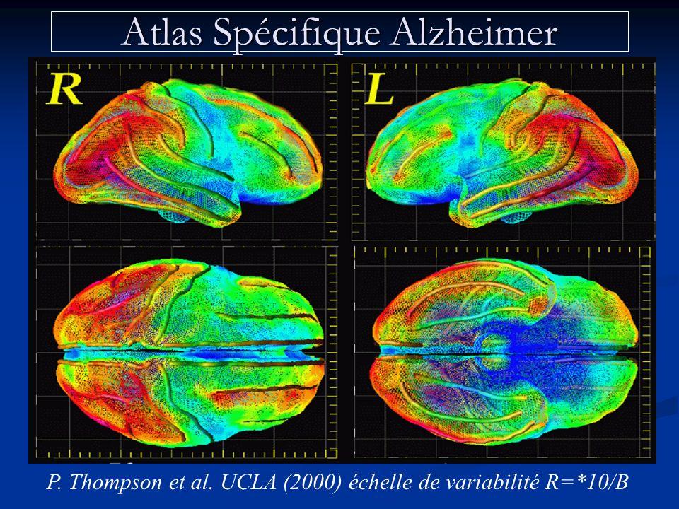 Atlas Spécifique Alzheimer P. Thompson et al. UCLA (2000) échelle de variabilité R=*10/B