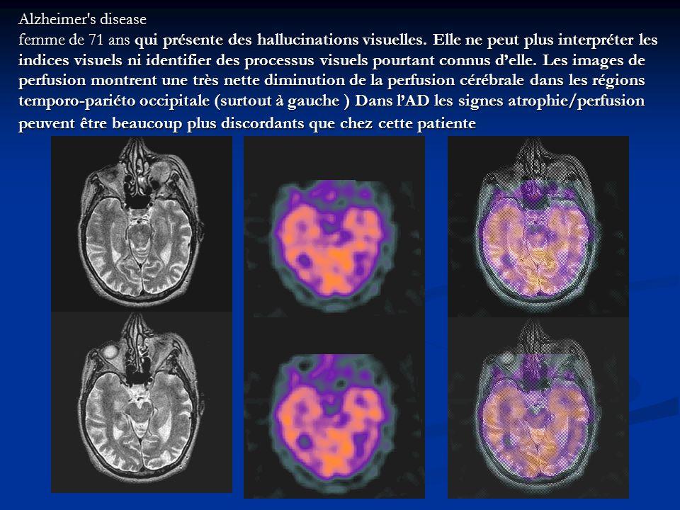 Alzheimer's disease femme de 71 ans qui présente des hallucinations visuelles. Elle ne peut plus interpréter les indices visuels ni identifier des pro
