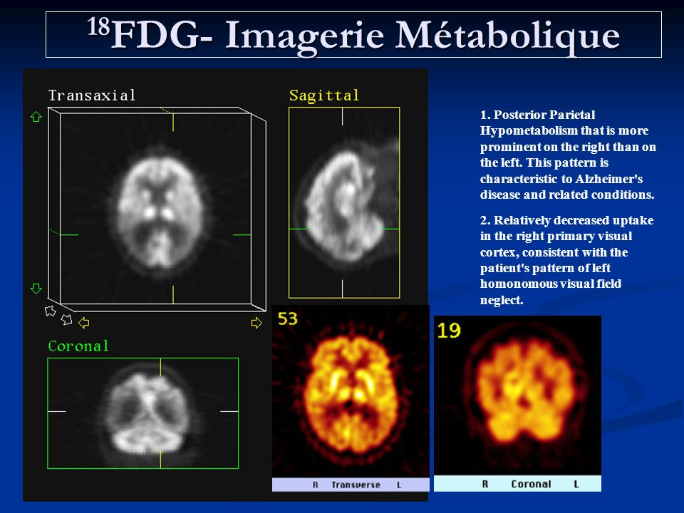 18 FDG- Imagerie Métabolique 1. Posterior Parietal Hypometabolism that is more prominent on the right than on the left. This pattern is characteristic