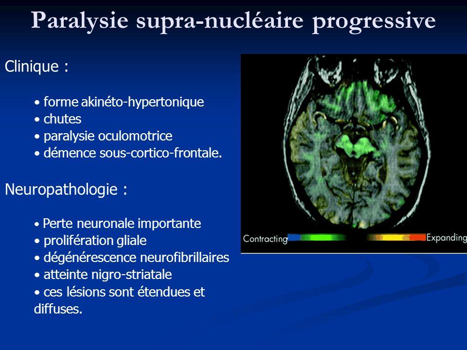 Paralysie supra-nucléaire progressive Clinique : forme akinéto-hypertonique chutes paralysie oculomotrice démence sous-cortico-frontale. Neuropatholog