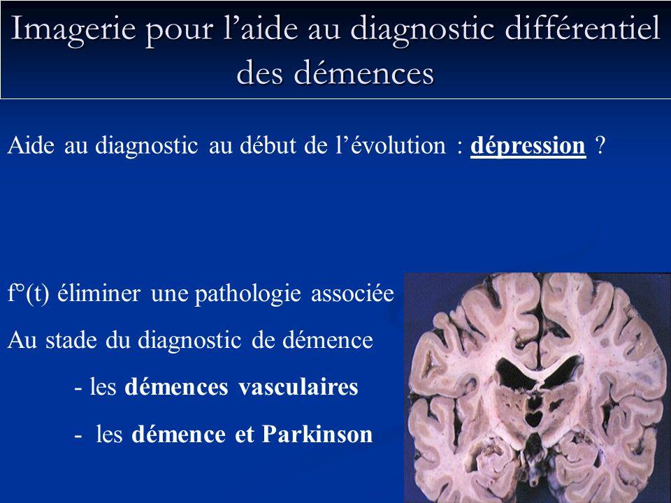 Imagerie pour laide au diagnostic différentiel des démences f°(t) éliminer une pathologie associée Au stade du diagnostic de démence - les démences va