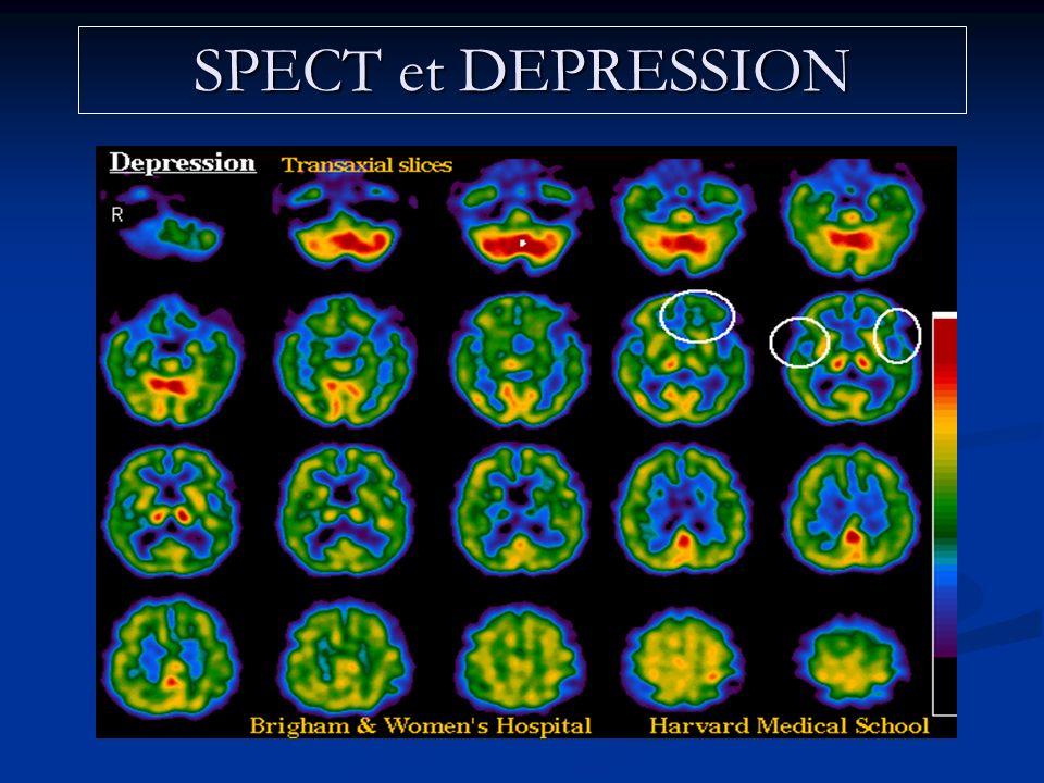 SPECT et DEPRESSION