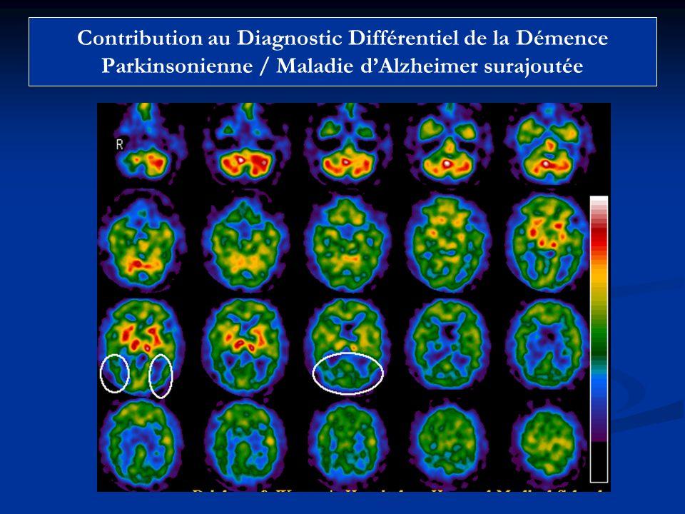 Contribution au Diagnostic Différentiel de la Démence Parkinsonienne / Maladie dAlzheimer surajoutée