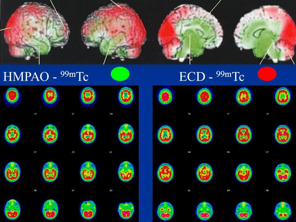 La Maladie dAlzheimer Incidence avec lâge 10% +65 > 47% +85ans Incidence avec lâge 10% +65 > 47% +85ans Facteurs de risques (génétique, ApoE-4) rares Facteurs de risques (génétique, ApoE-4) rares Dégénérescence neuronale multifactorielle le + svt Dégénérescence neuronale multifactorielle le + svt > > Production de A peptides > dépôts amyloïdes, plaques séniles > H > H yperphosphorylation de la protéine Tau > dégénérescence neurofibrillaire (surtout mésiale, hippocampique) > Déficit de la voie cholinergique
