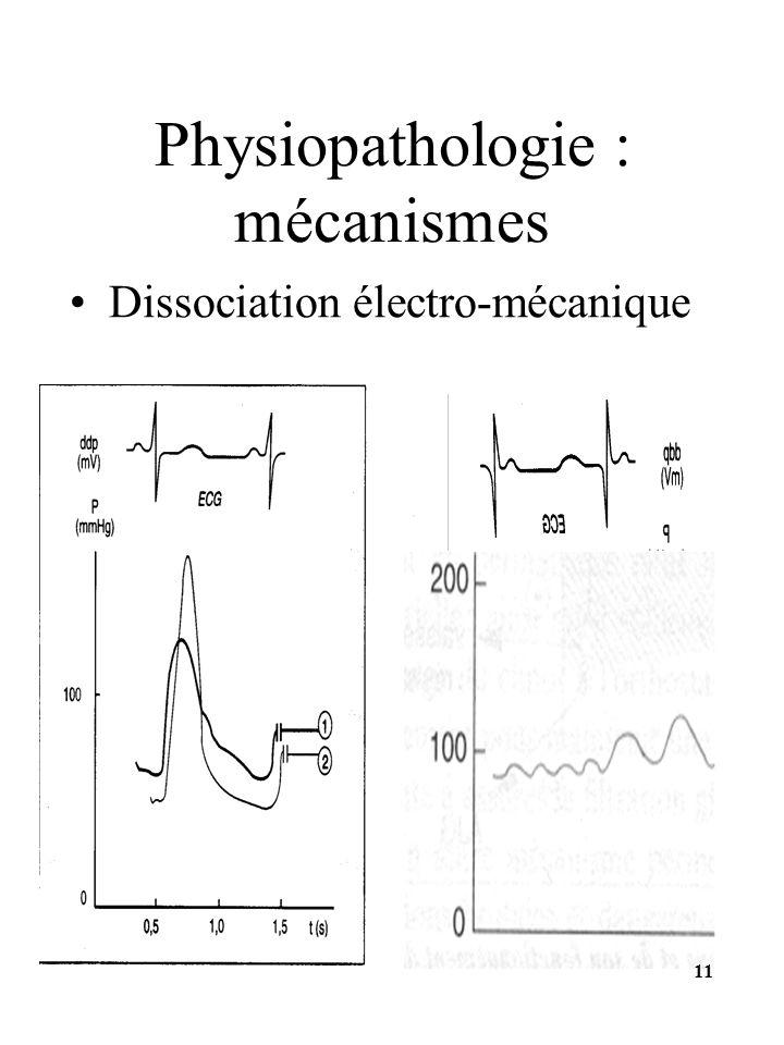 Dissociation électro-mécanique Physiopathologie : mécanismes 11