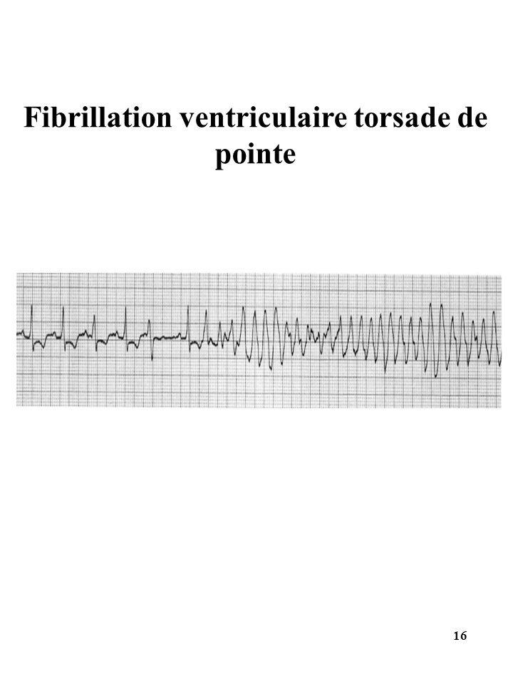 Fibrillation ventriculaire torsade de pointe 16