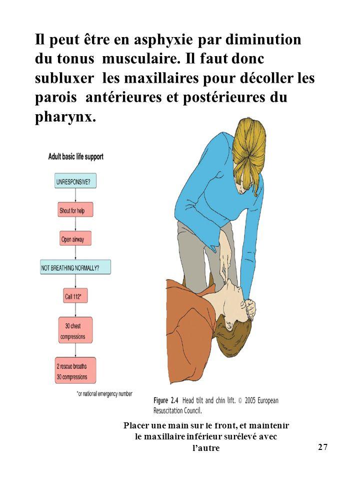 Placer une main sur le front, et maintenir le maxillaire inférieur surélevé avec lautre Il peut être en asphyxie par diminution du tonus musculaire. I