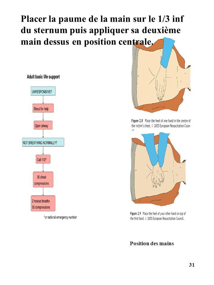 Position des mains 31 Placer la paume de la main sur le 1/3 inf du sternum puis appliquer sa deuxième main dessus en position centrale.