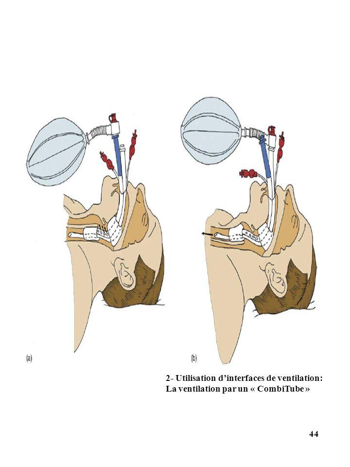 2- Utilisation dinterfaces de ventilation: La ventilation par un « CombiTube » 44