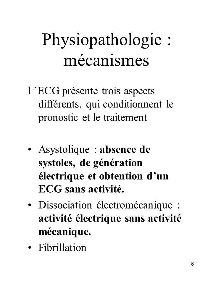 l ECG présente trois aspects différents, qui conditionnent le pronostic et le traitement Asystolique : absence de systoles, de génération électrique e