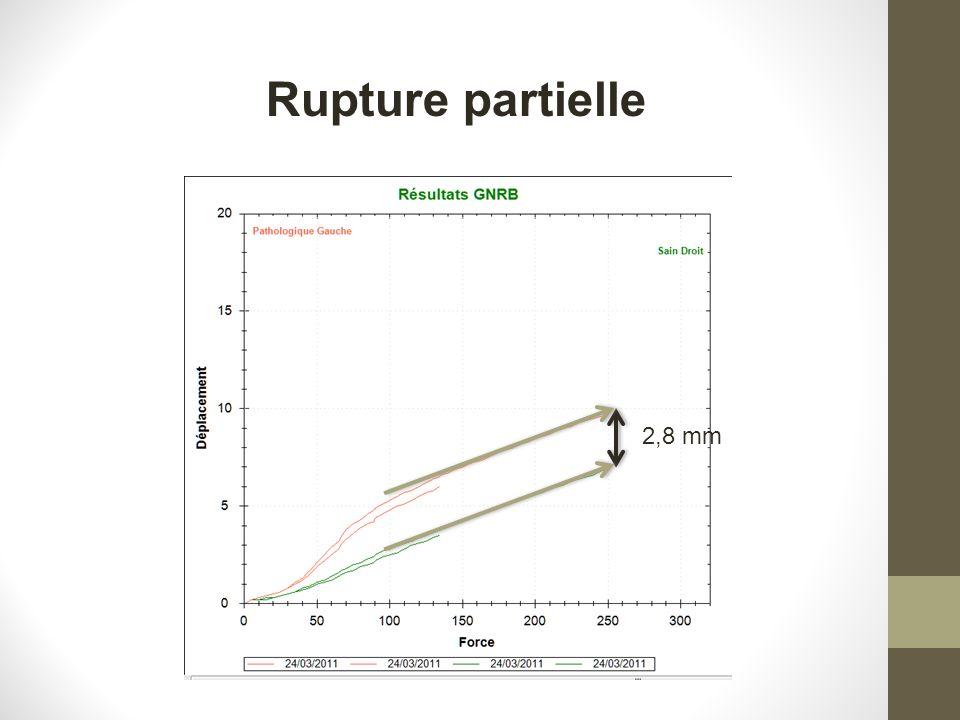 2,8 mm Rupture partielle