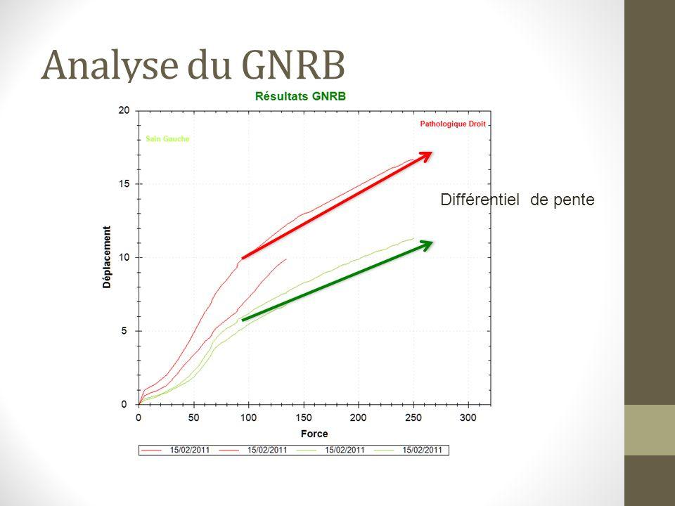 Matériels et méthodes: Etude prospective du 01/01/2011 et le 30/06/2011 Série continue de 114 patients (opérés dune rupture du LCA, par DIDT ou KJ) Bilan pré opératoire : IRM Mesures de la laxité au GNRB Mesures au Télos (méthode de référence)