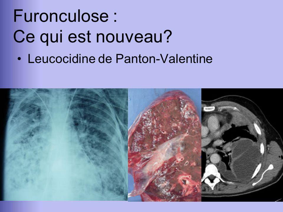 Leucocidine de Panton-Valentine Furonculose : Ce qui est nouveau?