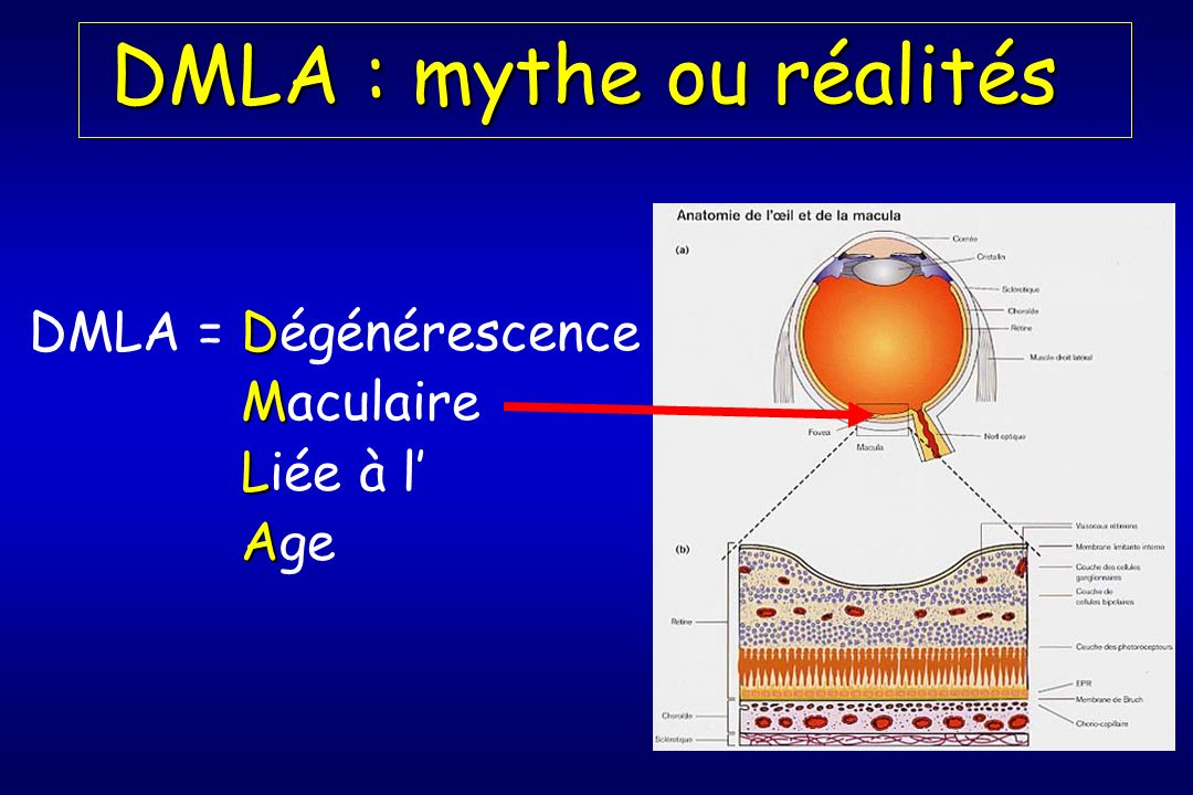 DMLA : mythe ou réalités DMLA : mythe ou réalités D DMLA = Dégénérescence M Maculaire L Liée à l A Age