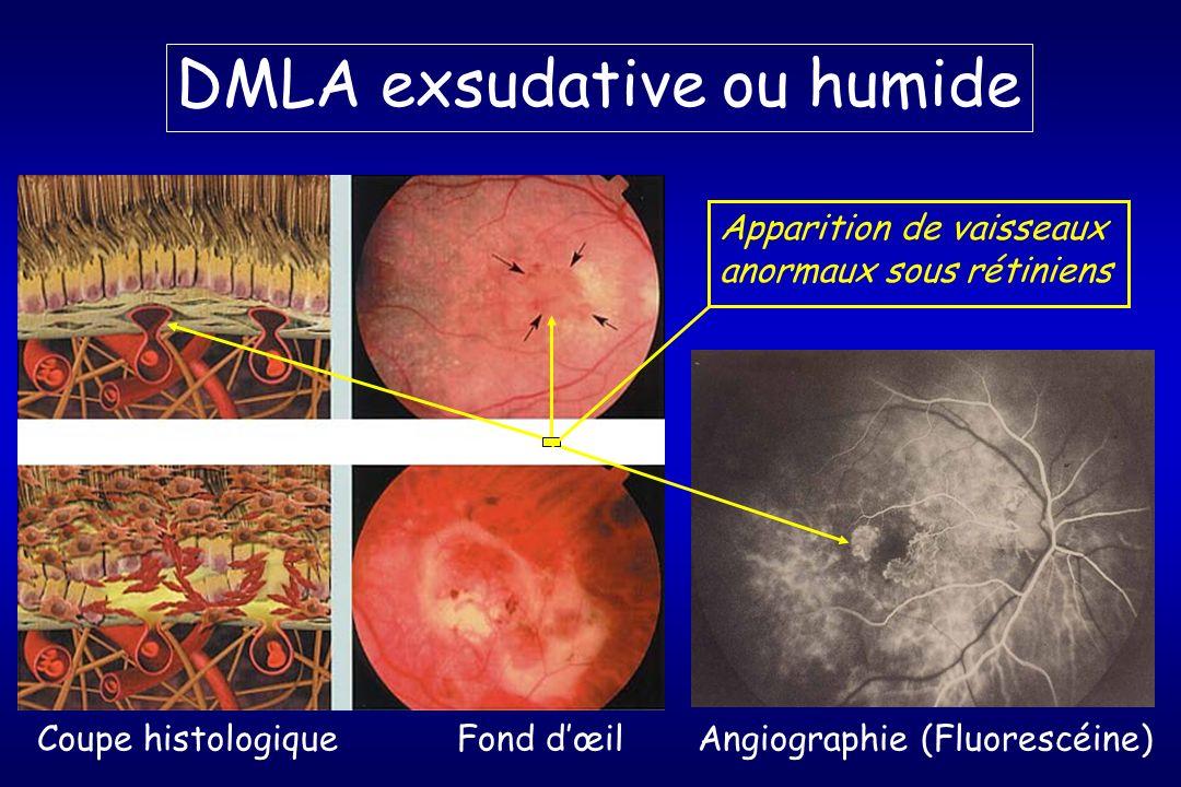 DMLA exsudative ou humide Coupe histologiqueFond dœil Angiographie (Fluorescéine) Apparition de vaisseaux anormaux sous rétiniens