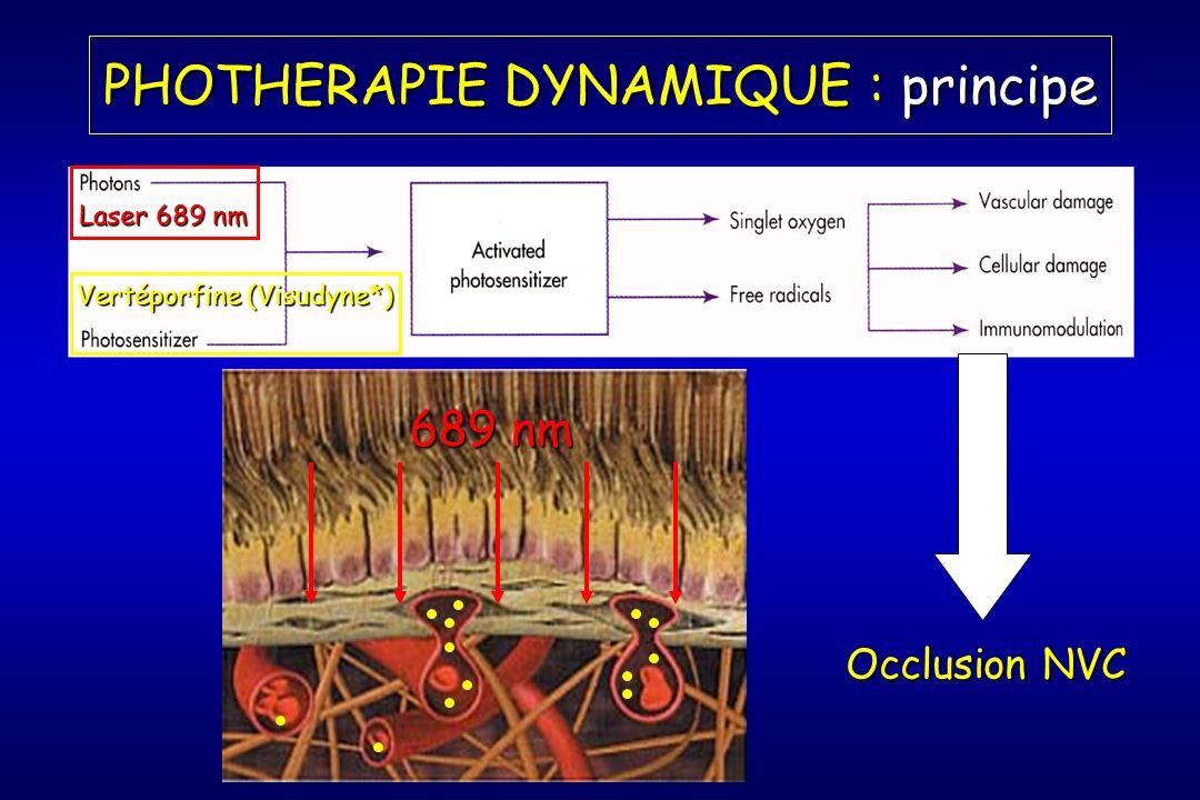 PHOTHERAPIE DYNAMIQUE : principe Laser 689 nm Occlusion NVC 689 nm Vertéporfine (Visudyne*)
