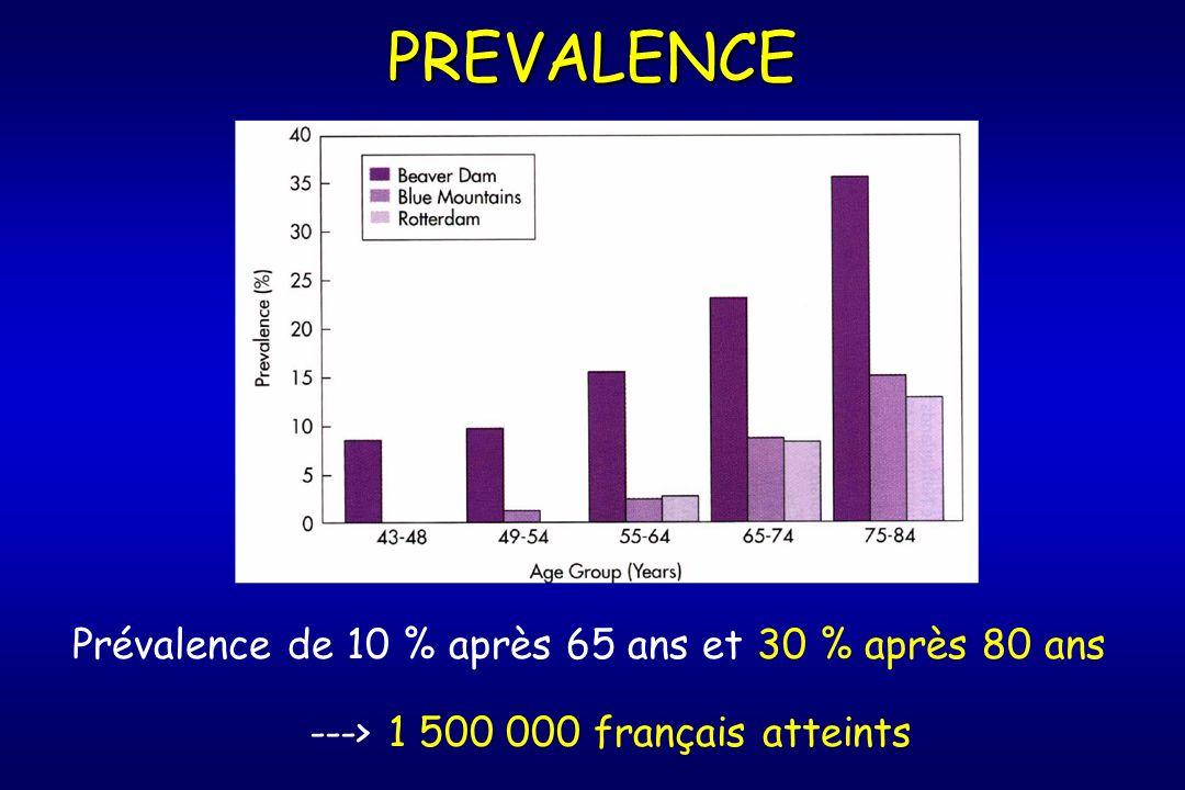 PREVALENCE Prévalence de 10 % après 65 ans et 30 % après 80 ans ---> 1 500 000 français atteints
