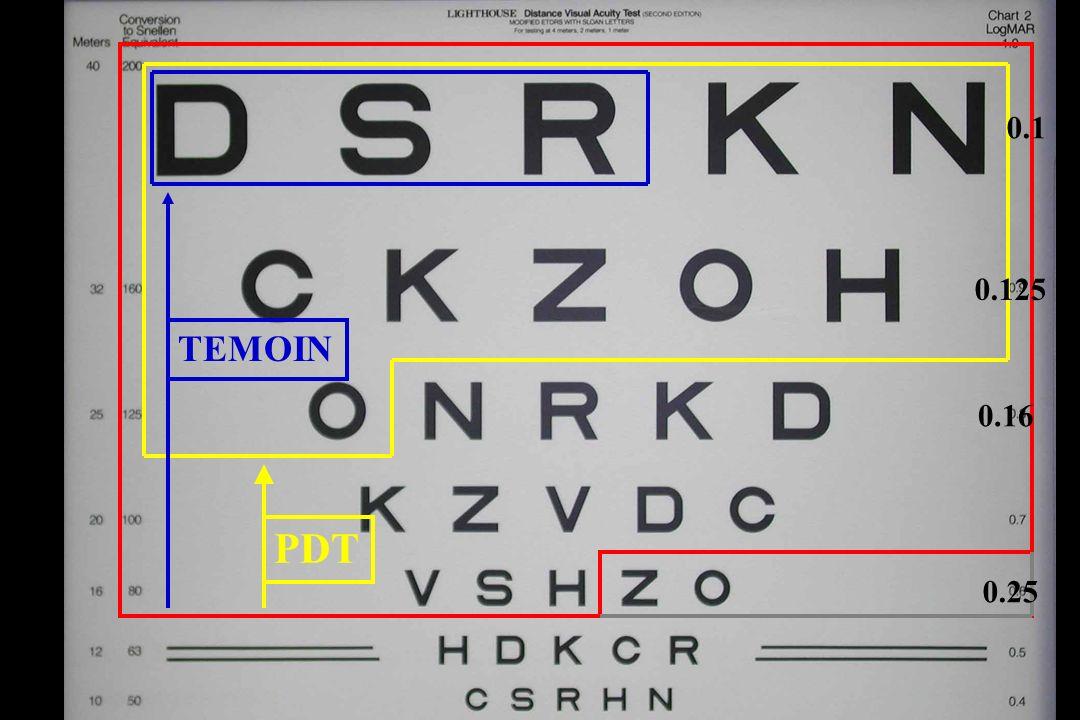 PDT TEMOIN 0.25 0.16 0.125 0.1