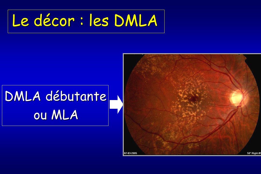 DMLA débutante ou MLA Le décor : les DMLA