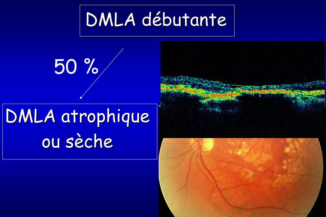 DMLA débutante DMLA atrophique ou sèche 50 %