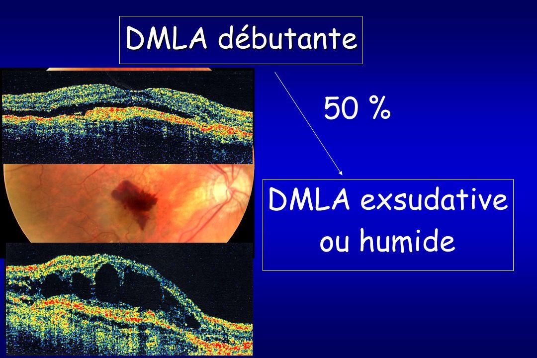 DMLA débutante DMLA exsudative ou humide 50 %