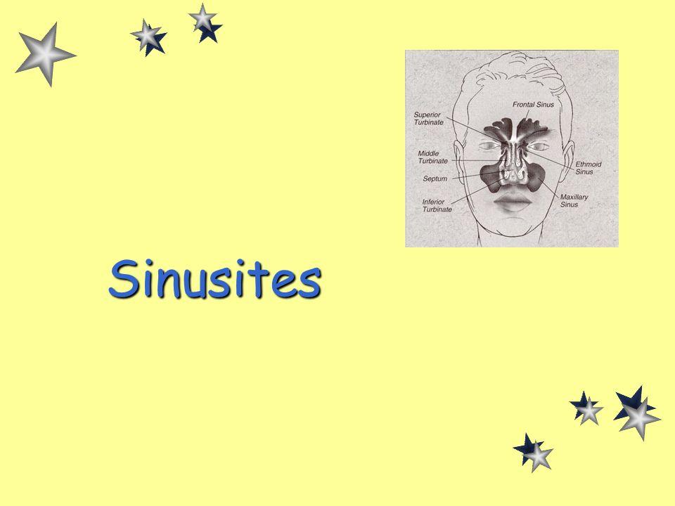 Sinusites de ladulte