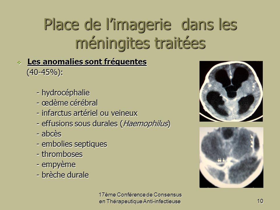 10 Place de limagerie dans les méningites traitées Les anomalies sont fréquentes Les anomalies sont fréquentes (40-45%): (40-45%): - hydrocéphalie - hydrocéphalie - œdème cérébral - œdème cérébral - infarctus artériel ou veineux - infarctus artériel ou veineux - effusions sous durales (Haemophilus) - effusions sous durales (Haemophilus) - abcès - abcès - embolies septiques - embolies septiques - thromboses - thromboses - empyème - empyème - brèche durale - brèche durale
