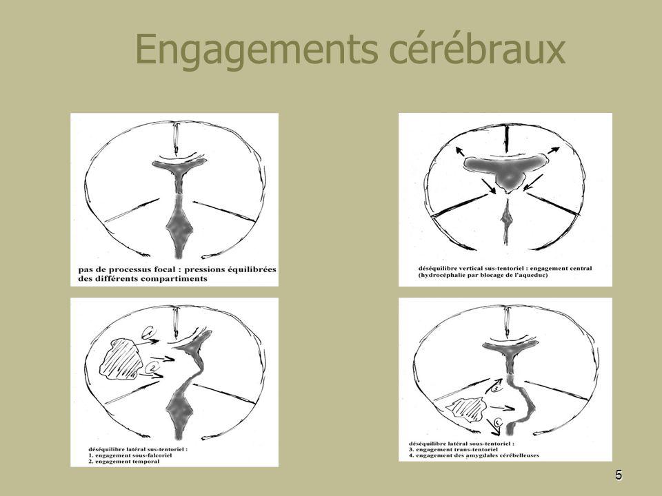 5 Engagements cérébraux