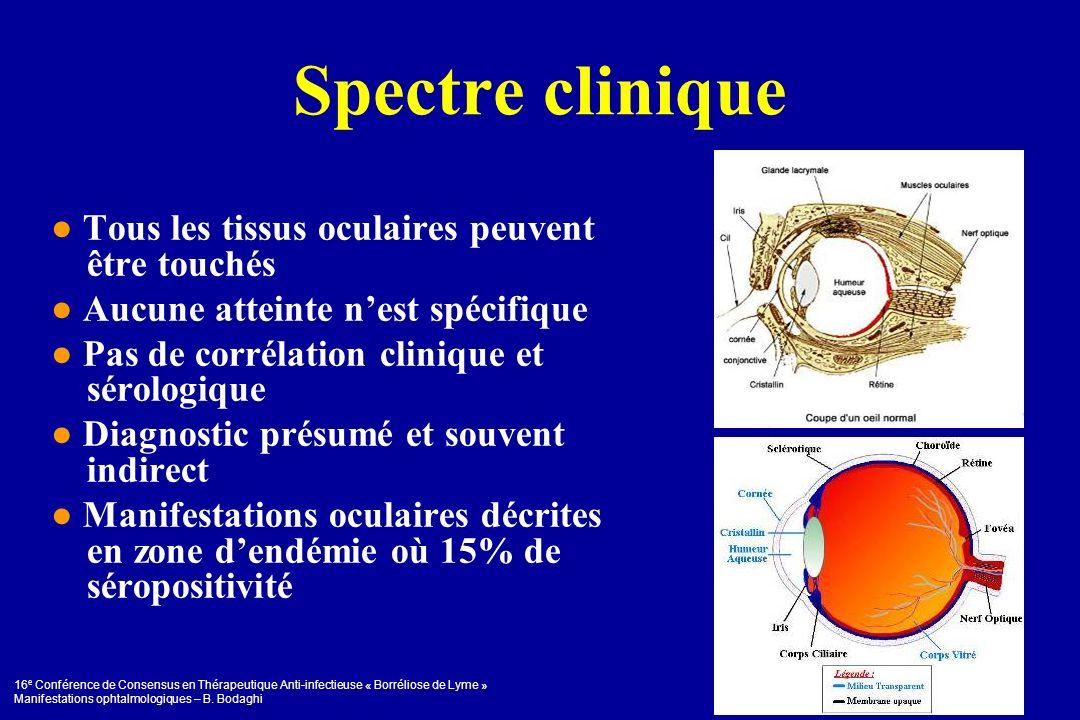 16 e Conférence de Consensus en Thérapeutique Anti-infectieuse « Borréliose de Lyme » Manifestations ophtalmologiques – B. Bodaghi Spectre clinique To