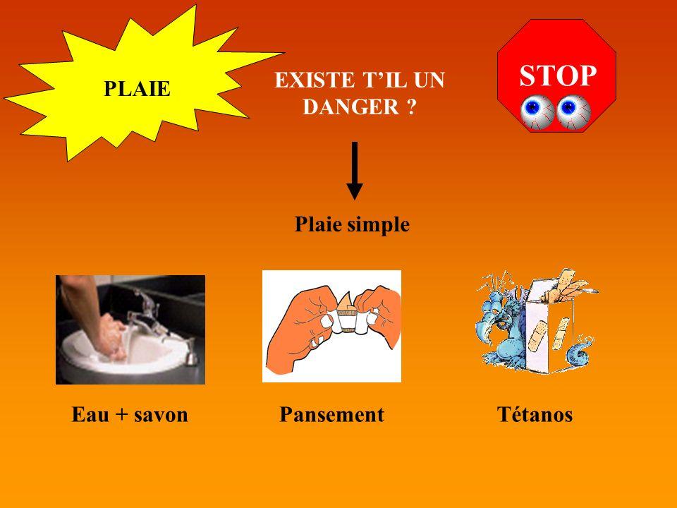 PLAIE STOP EXISTE TIL UN DANGER ? Plaie simple Eau + savonPansementTétanos
