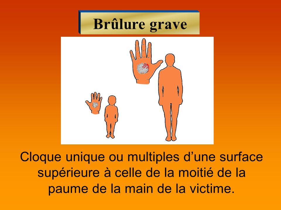 Brûlure grave Cloque unique ou multiples dune surface supérieure à celle de la moitié de la paume de la main de la victime.