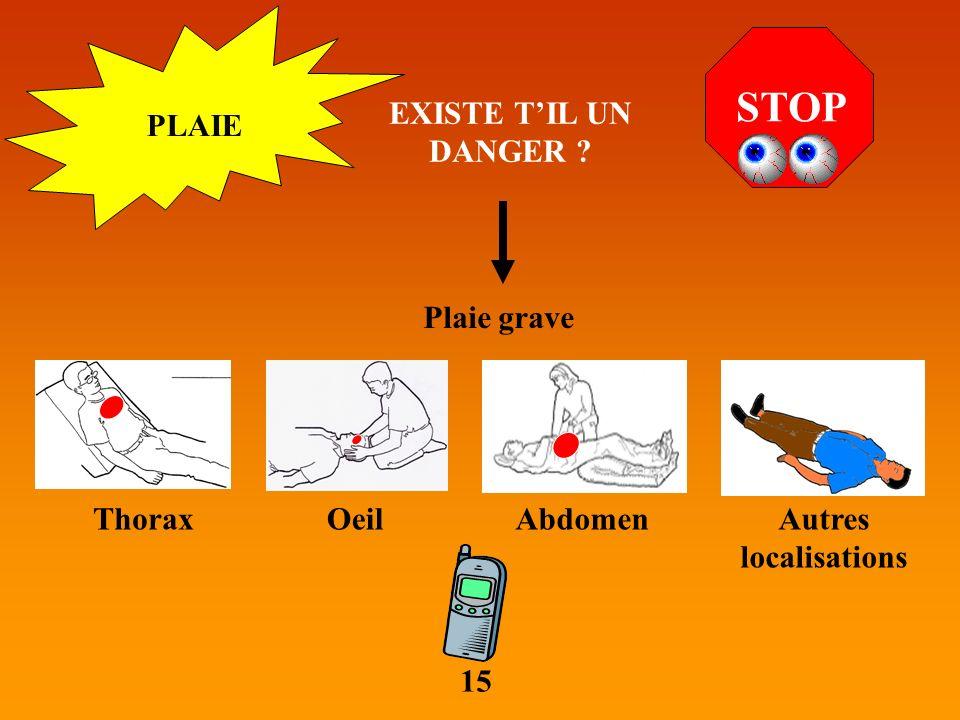 PLAIE STOP EXISTE TIL UN DANGER ? Plaie grave ThoraxOeilAbdomenAutres localisations 15
