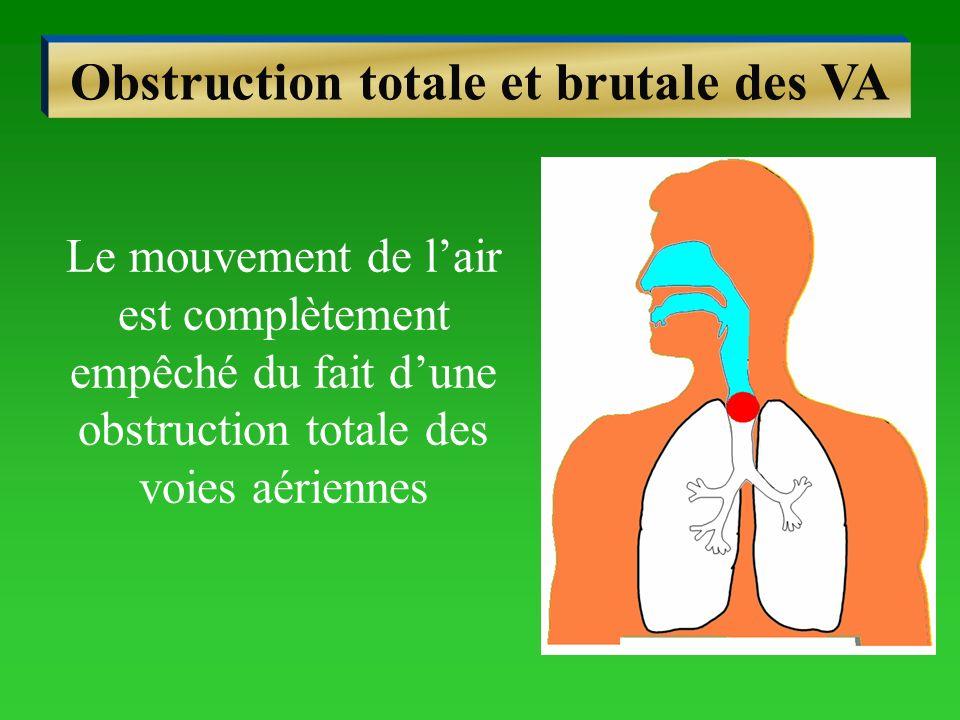 Obstruction totale et brutale des VA Le mouvement de lair est complètement empêché du fait dune obstruction totale des voies aériennes