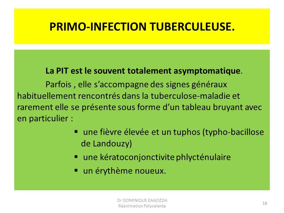 PRIMO-INFECTION TUBERCULEUSE. La PIT est le souvent totalement asymptomatique. Parfois, elle saccompagne des signes généraux habituellement rencontrés