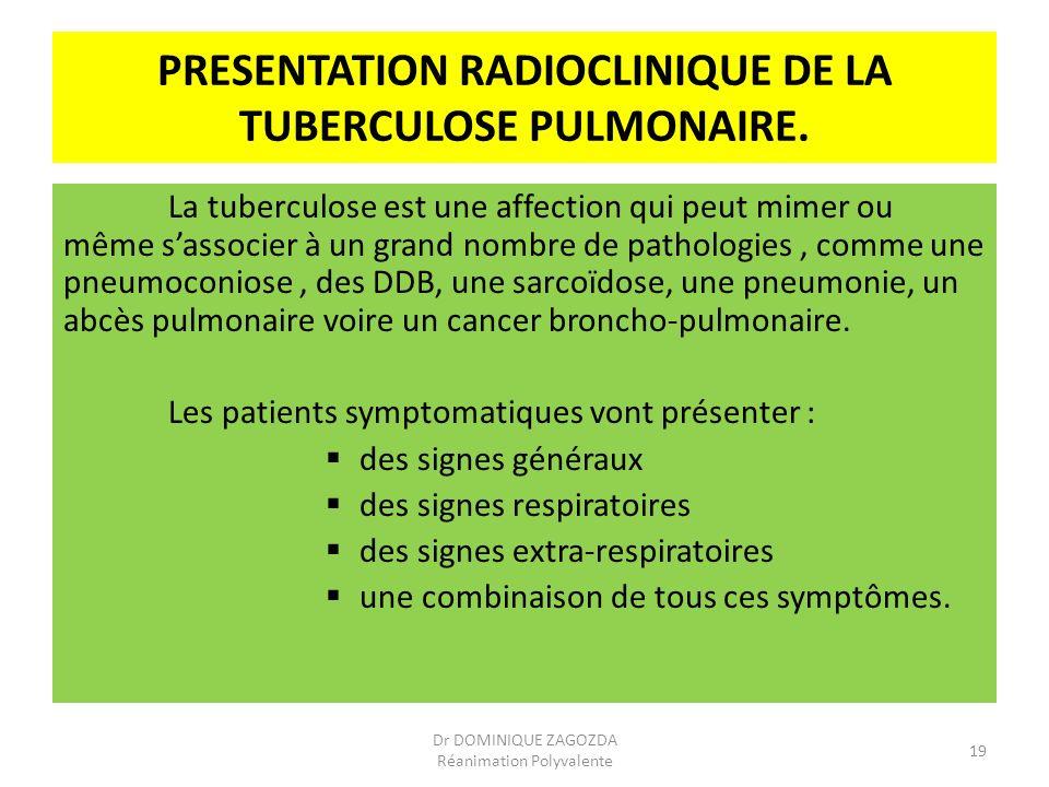 PRESENTATION RADIOCLINIQUE DE LA TUBERCULOSE PULMONAIRE. La tuberculose est une affection qui peut mimer ou même sassocier à un grand nombre de pathol