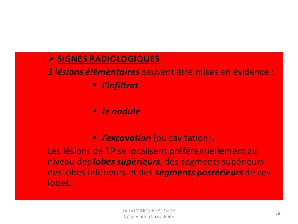 SIGNES RADIOLOGIQUES 3 lésions élémentaires peuvent être mises en évidence : linfiltrat le nodule lexcavation (ou cavitation). Les lésions de TP se lo