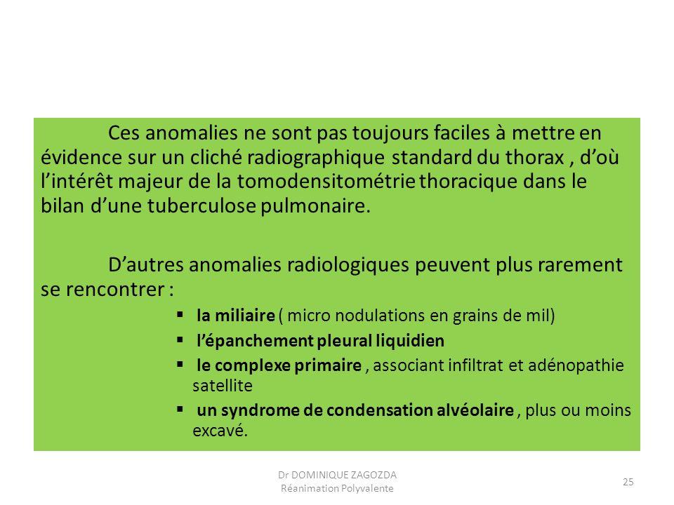 Ces anomalies ne sont pas toujours faciles à mettre en évidence sur un cliché radiographique standard du thorax, doù lintérêt majeur de la tomodensito