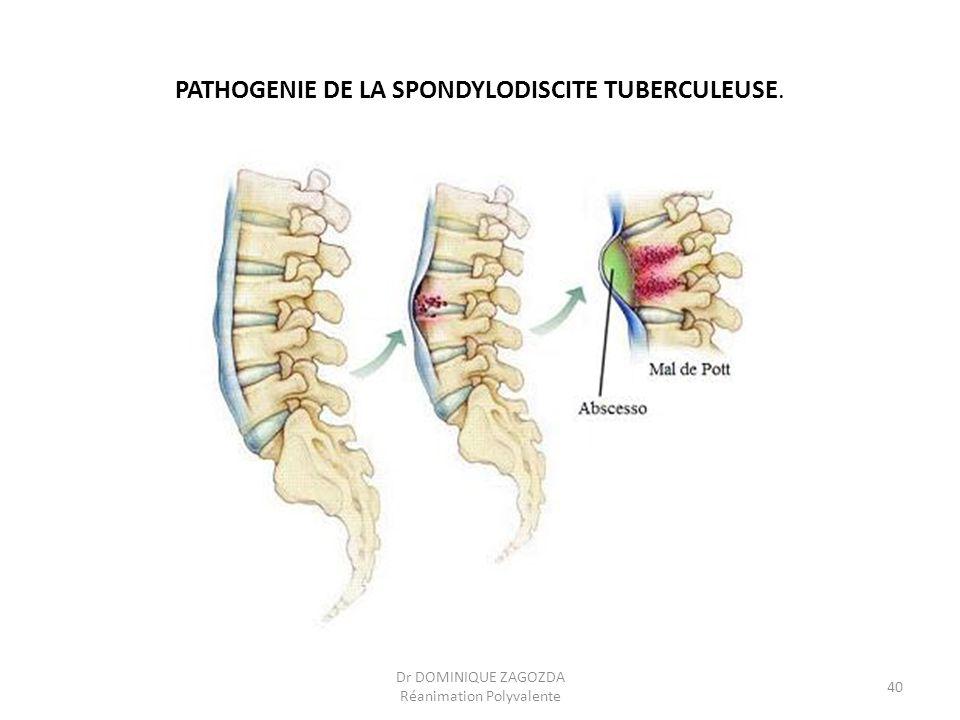 PATHOGENIE DE LA SPONDYLODISCITE TUBERCULEUSE. Dr DOMINIQUE ZAGOZDA Réanimation Polyvalente 40