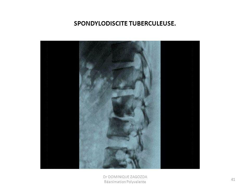 SPONDYLODISCITE TUBERCULEUSE. Dr DOMINIQUE ZAGOZDA Réanimation Polyvalente 41