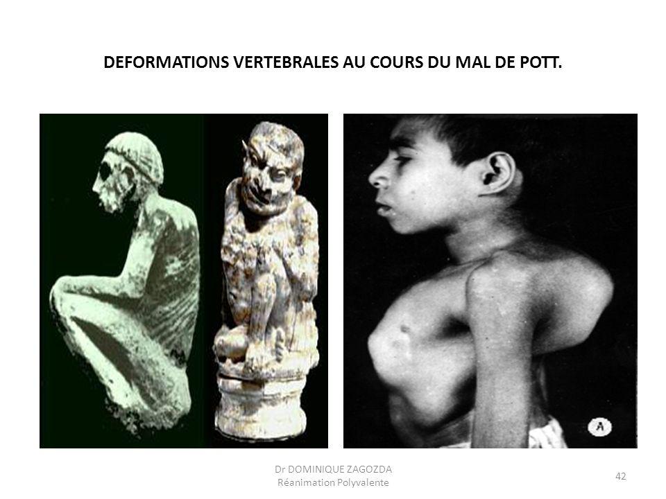 DEFORMATIONS VERTEBRALES AU COURS DU MAL DE POTT. Dr DOMINIQUE ZAGOZDA Réanimation Polyvalente 42