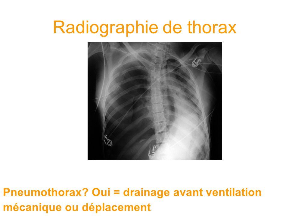 Pneumothorax? Oui = drainage avant ventilation mécanique ou déplacement Radiographie de thorax